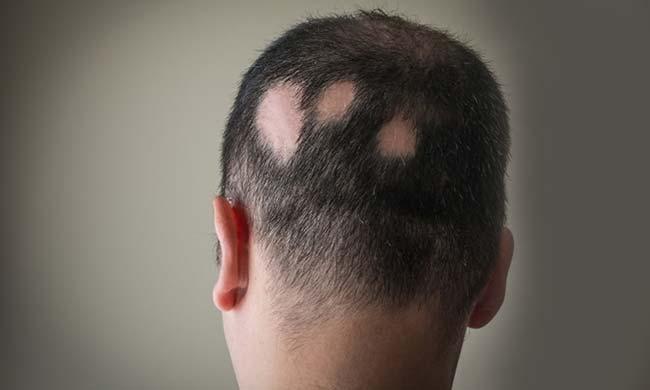 Это изображение имеет пустой атрибут alt; его имя файла - alopecia-areata.jpg
