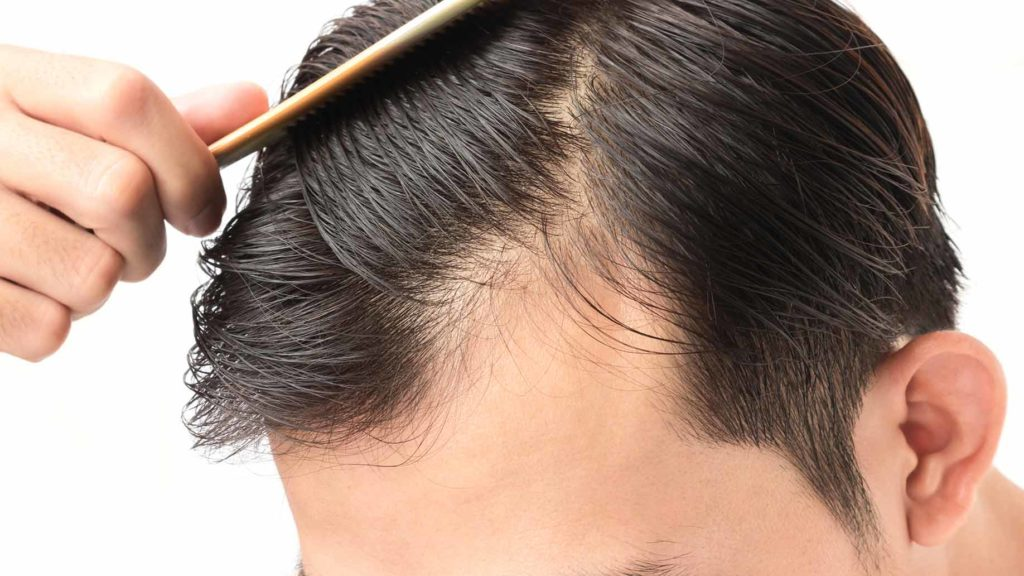 Это изображение имеет пустой атрибут alt; его имя файла - hair-loss-balding-thinning-natural-remedies-1024x576.jpg