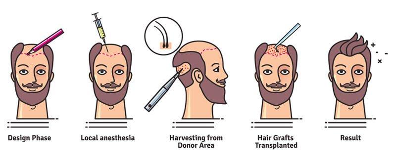 Это изображение имеет пустой атрибут alt; его имя файла - hair-transplant-procedure-1.jpg